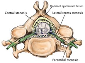 lateral recess stenosis and foraminal stenosis